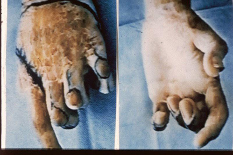 Анкилоз в межфаланговых суставах при операции физио-терапевтические приборы для лечения суставов